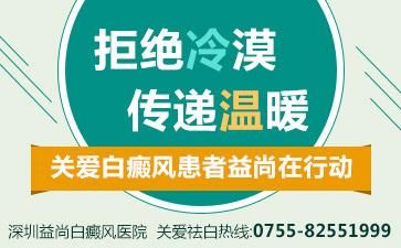 深圳白斑病公立医院嘉荐林铄泓